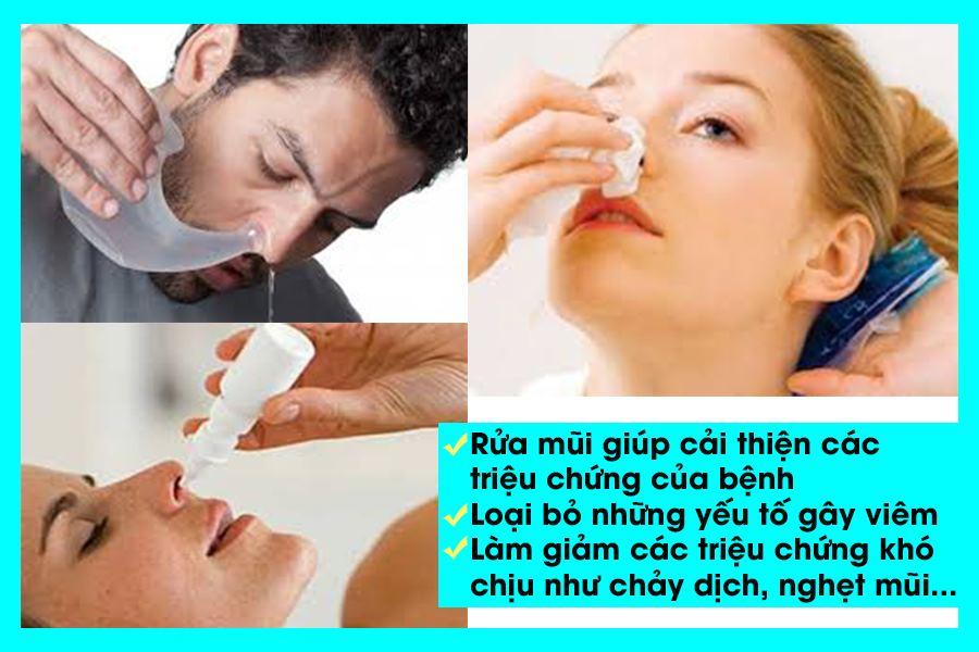 Rửa mũi chữa viêm xoang cải thiện tình trạng viêm nhiễm