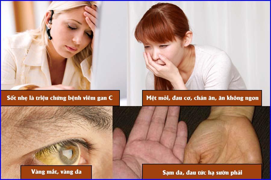 Triệu chứng viêm gan C