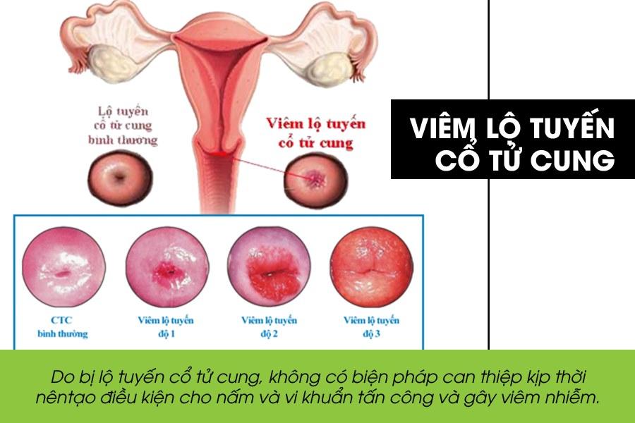 Viêm lộ tuyến cổ tử cung là bệnh về tử cung thường gặp
