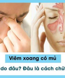 Viêm xoang có mủ là biến chứng của bệnh viêm xoang