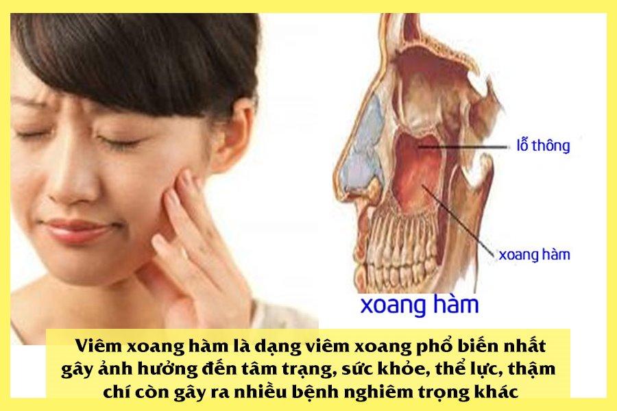 Viêm xoang hàm là viêm xoang phổ biến nhất
