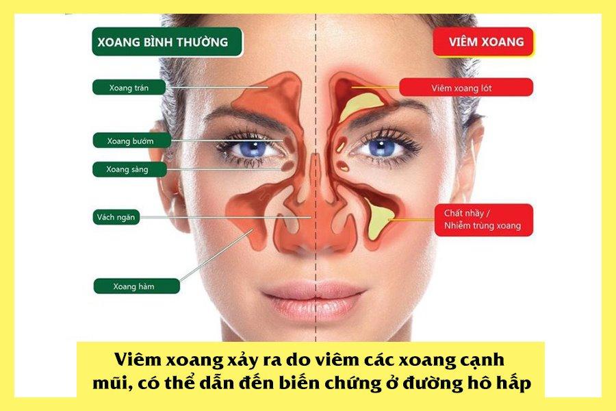 Bệnh viêm xoang gây biến chứng ở đường hô hấp