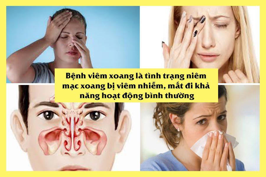 Bệnh viêm xoang là gì