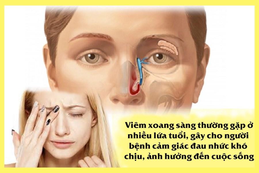 Viêm xoang sàng là bệnh thường gặp