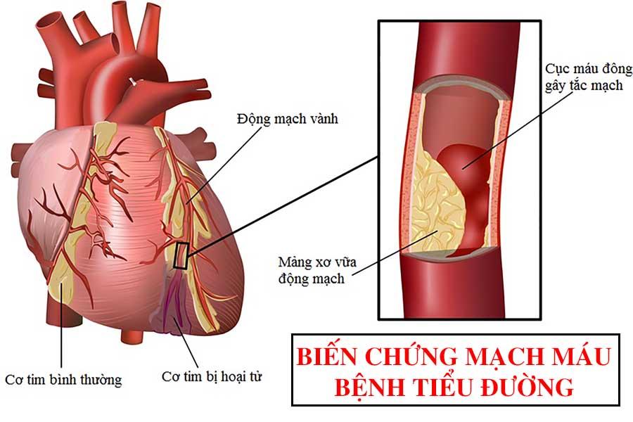 Biến chứng mạch máu ở bệnh tiểu đường