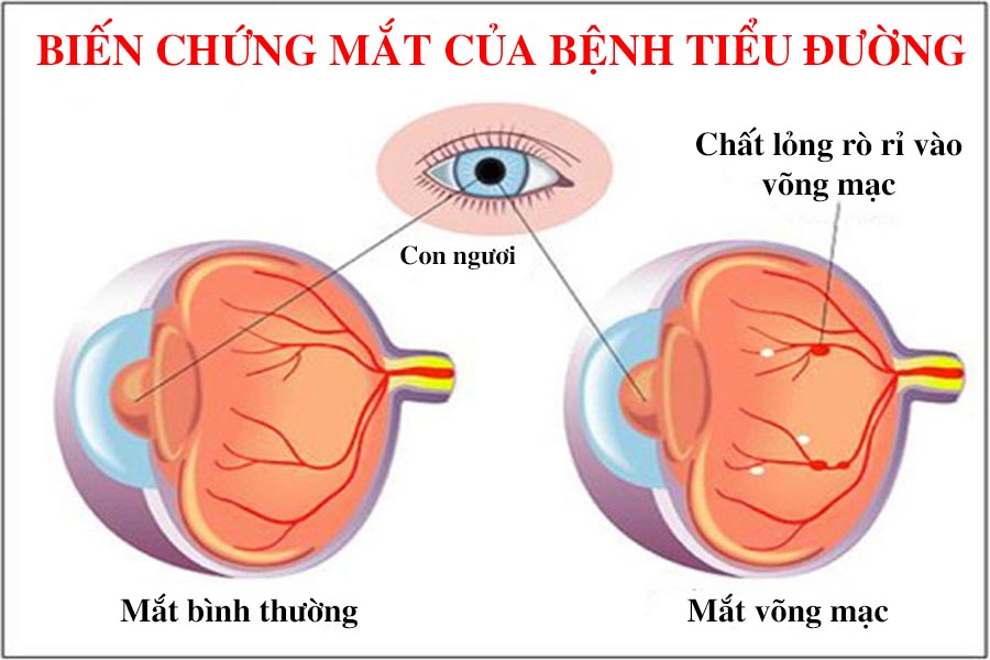 Biến chứng mắt của bệnh tiểu đường
