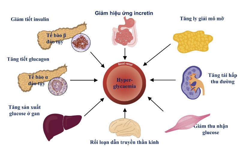 Cơ chế tiểu đường