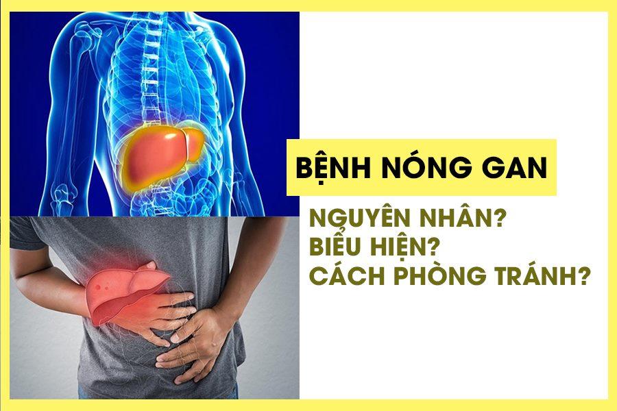 Bệnh nóng gan là bệnh lý về gan thường gặp