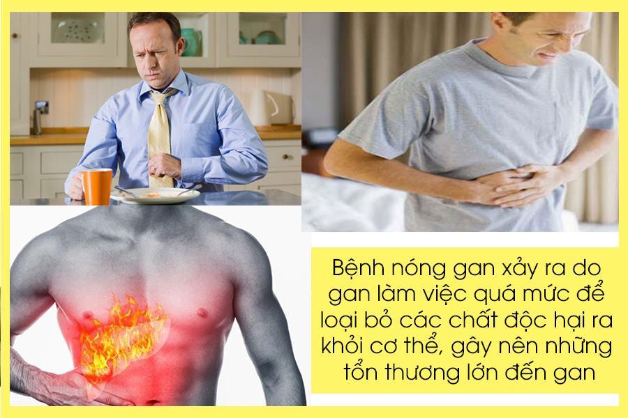 Bệnh nóng gan là gì