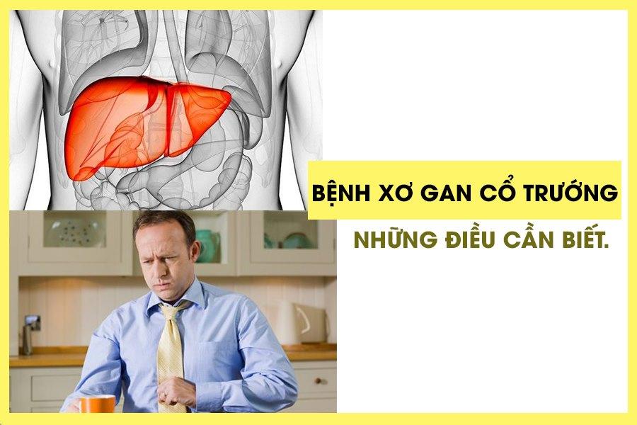 Bệnh xơ gan cổ trướng ảnh hưởng đến tính mạng