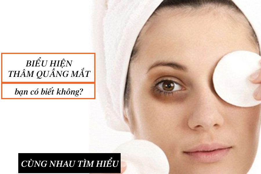 Biểu hiện thâm quầng mắt