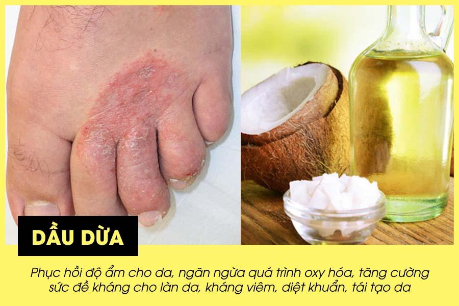 Cách chữa vảy nến ở chân bằng dầu dừa