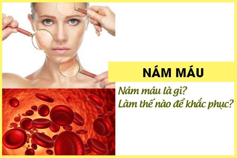 Nám máu ảnh hưởng đến vẻ đẹp của chị em