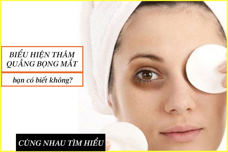 Biểu hiện thâm quầng bọng mắt