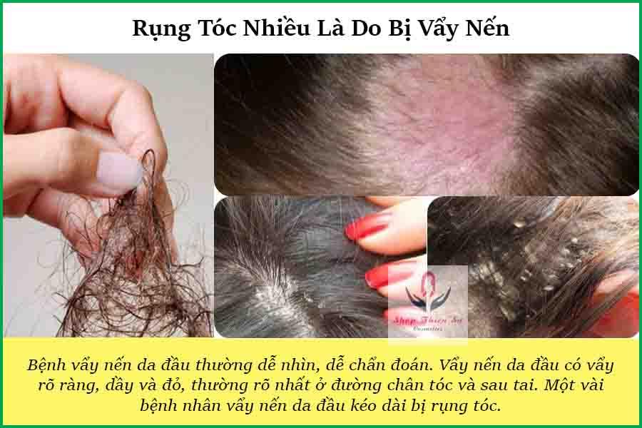Rụng tóc nhiều là do bị bệnh vẩy nến