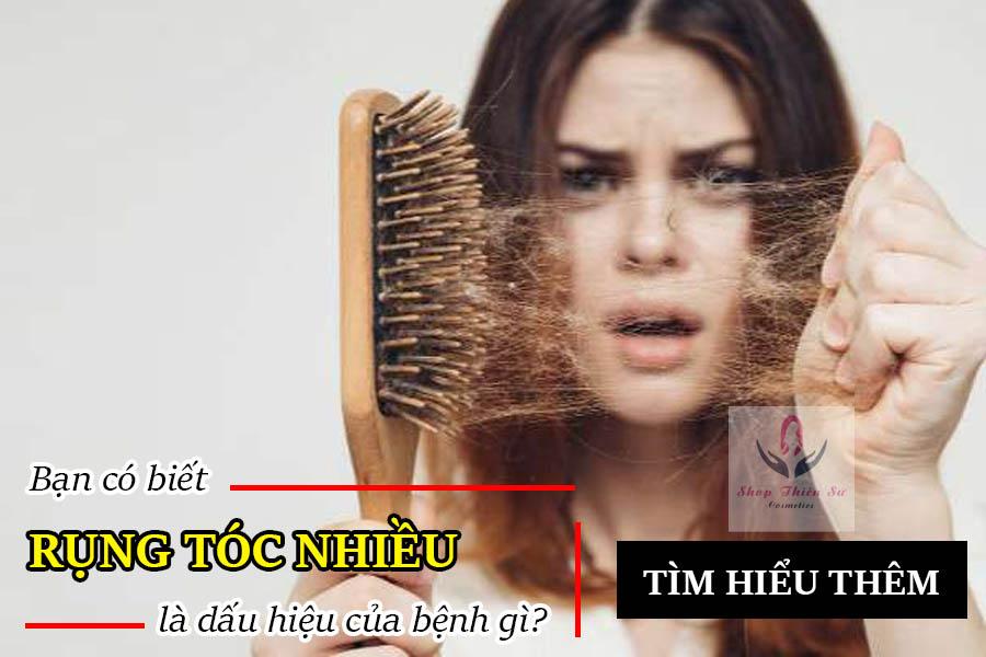 Rụng tóc nhiều