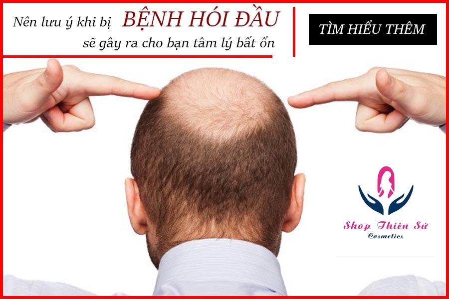 Bệnh hói đầu