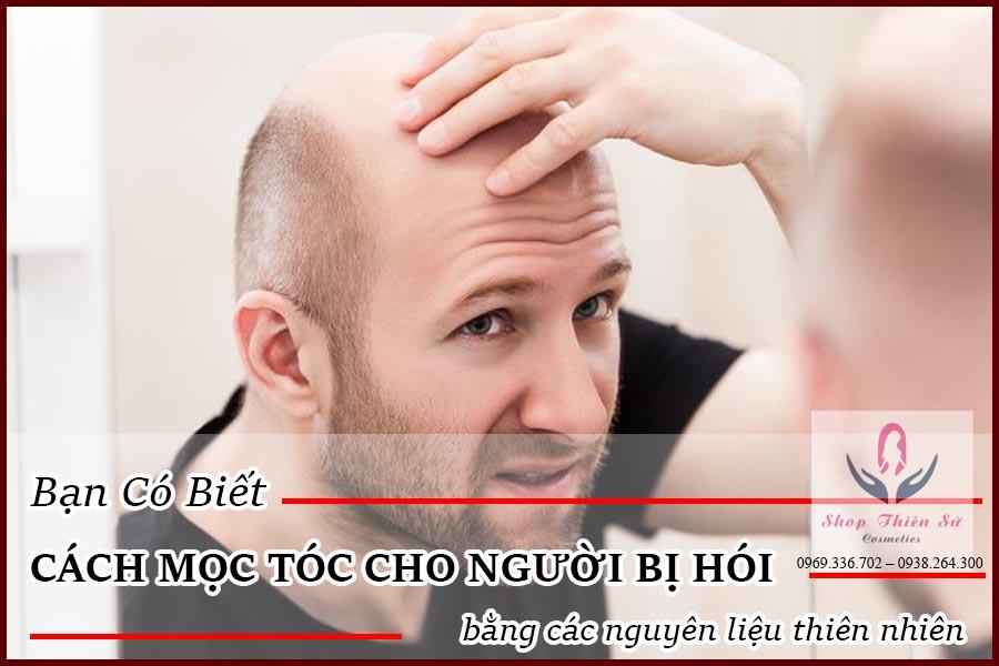 Cách mọc tóc cho người bị hói