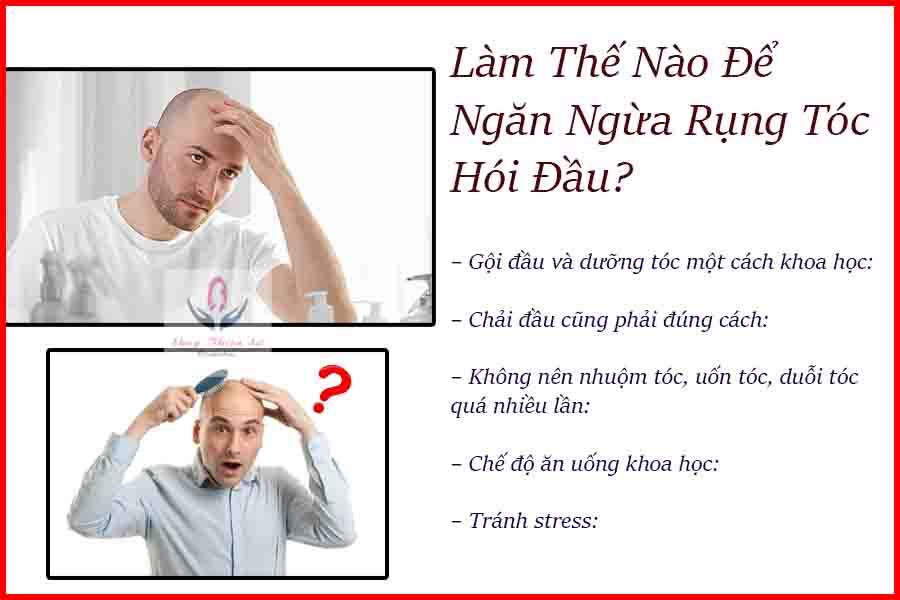 Cách phòng tránh bảo vệ bệnh hói đầu