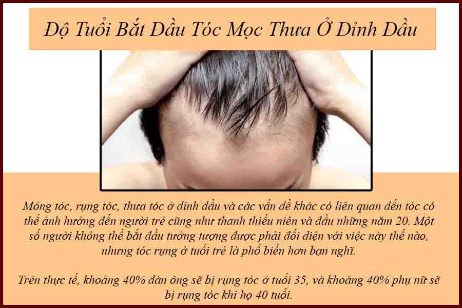 Độ tuổi bắt đầu tóc mọc thưa ở đỉnh đầu