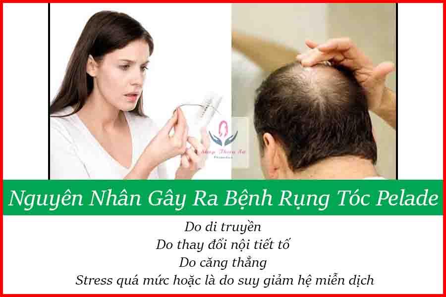 Nguyên nhân rụng tóc Pelade