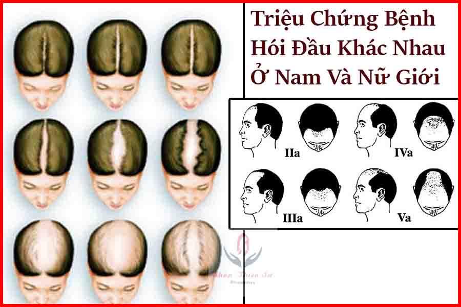 Triệu chứng bệnh hói đầu ở nam và nữ giới