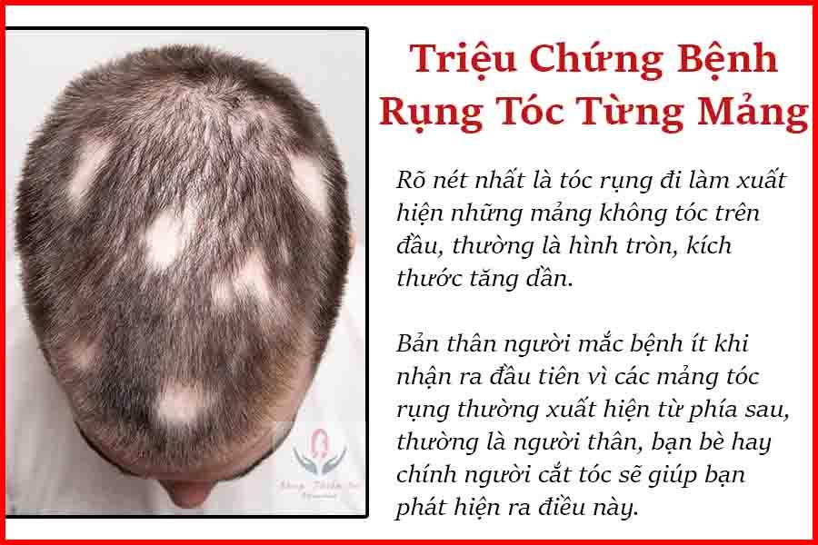 Triệu chứng bệnh rụng tóc từng mảng
