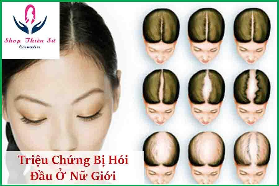 Triệu chứng bị hói đầu ở nữ