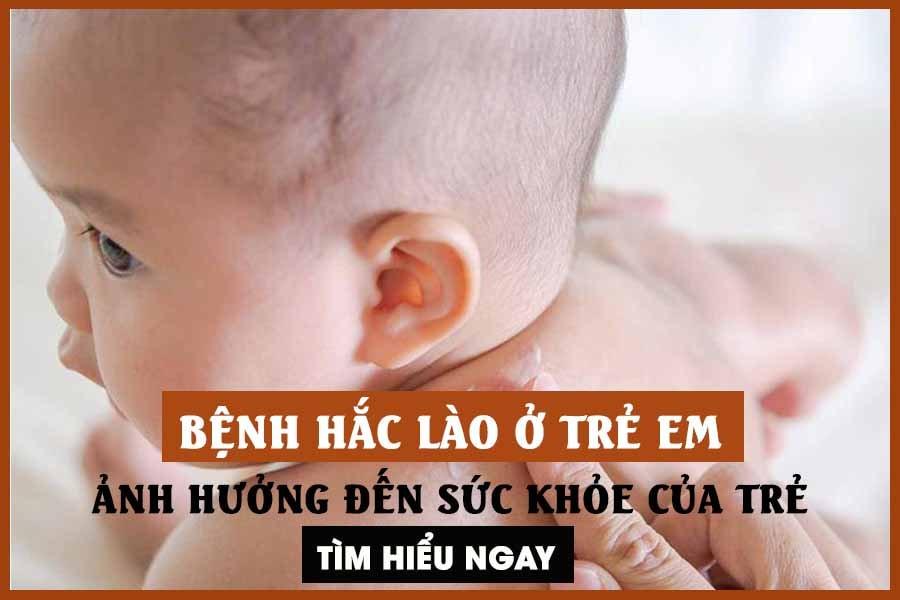 Bệnh hắc lào ở trẻ em