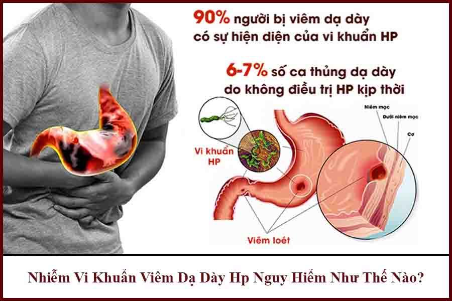 Bệnh viêm dạ dày HP gây nguy hiểm