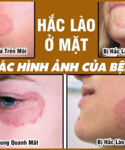 Các hình ảnh của bệnh Hắc Lào ở mặt