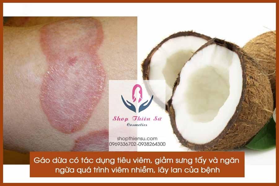 Cách chữa bệnh hắc lào bằng gáo dừa