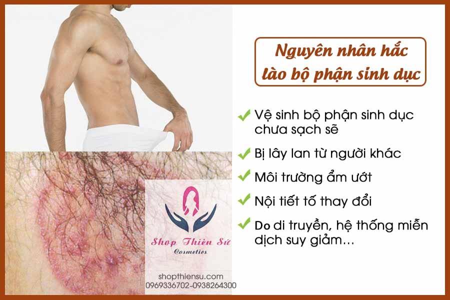 Nguyên nhân gây hắc lào ở bộ phận sinh dục