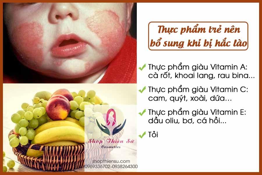 Thực phẩm nên bổ sung khi bệnh hắc lào ở trẻ em