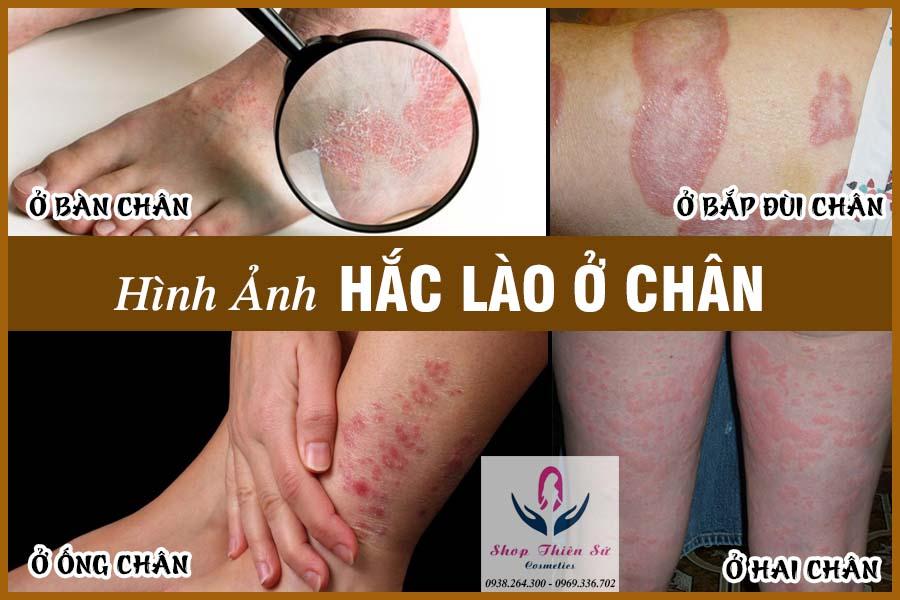 Tổng hợp các hình ảnh bệnh hắc lào ở chân