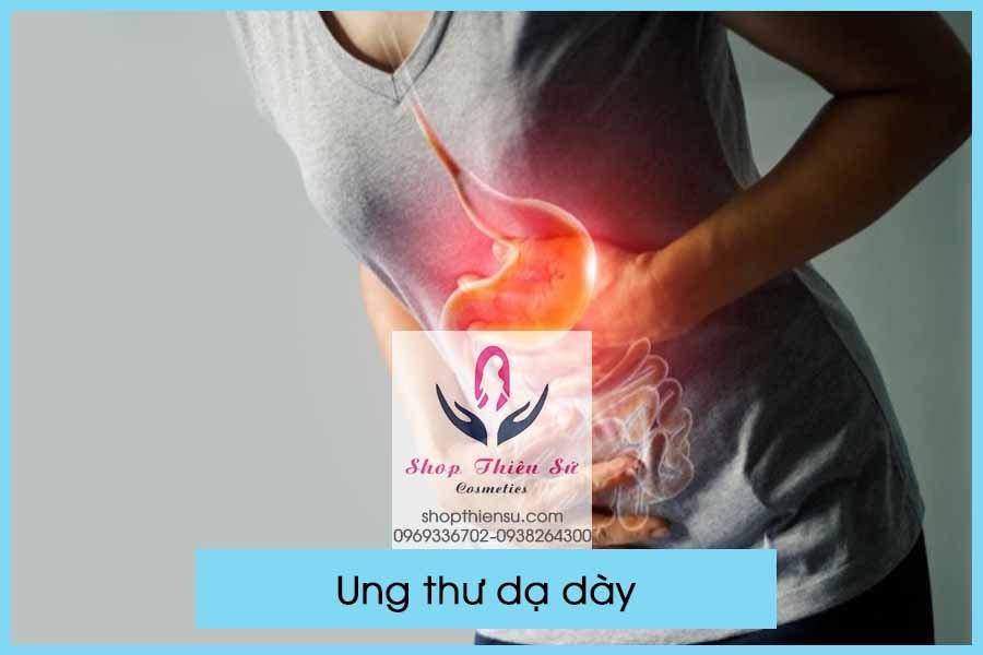 Biến chứng viêm loét dạ dày là ung thư dạ dày