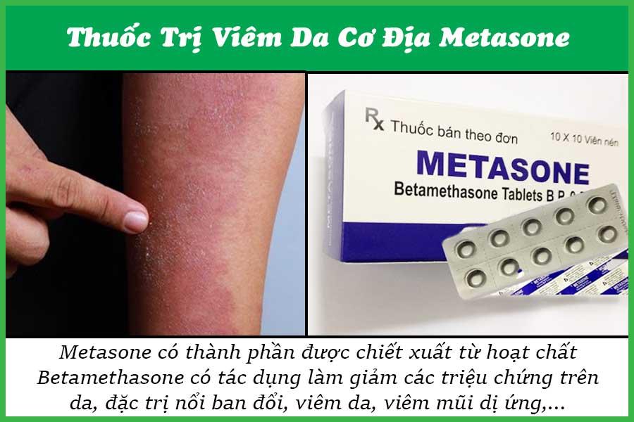 Thuốc trị bệnh viêm da cơ địa Metasone