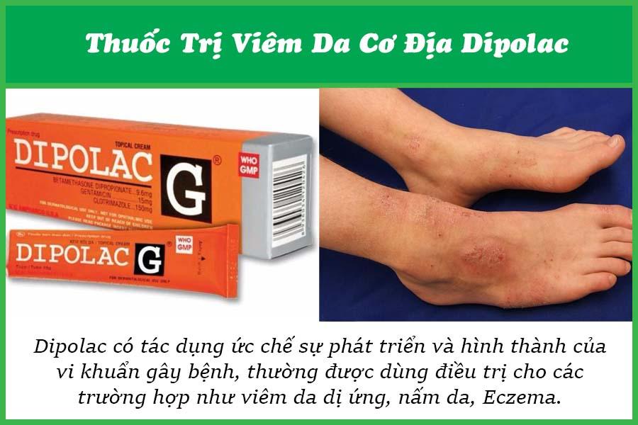 Thuốc trị bệnh viêm da cơ địa diplolac