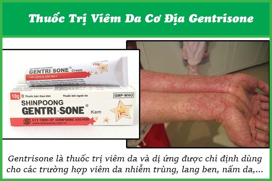Thuốc trị bệnh viêm da cơ địa Gentrisone