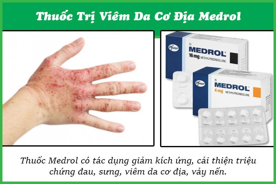 Thuốc trị bệnh viêm da cơ địa Medrol