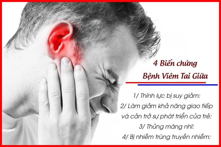 4 Biến chứng của bệnh viêm tai giữa