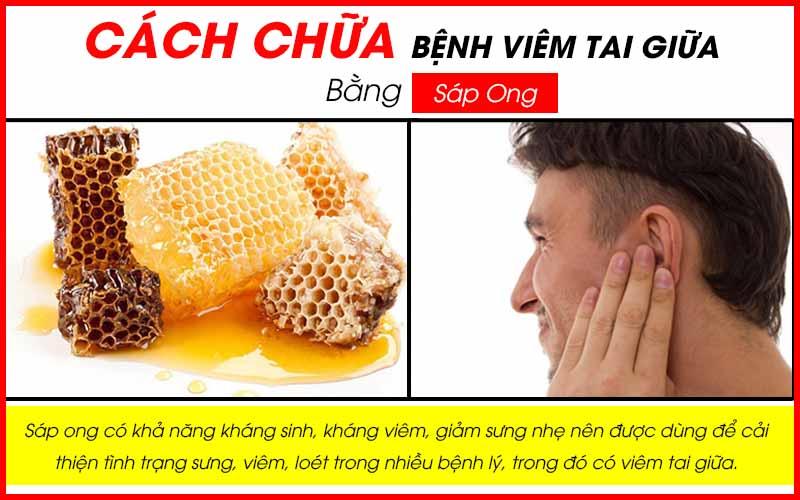 Cách chữa bệnh viêm tai giữa bằng sáp ong