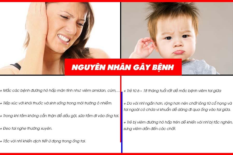 Nguyên nhân của bệnh viêm tai giữa