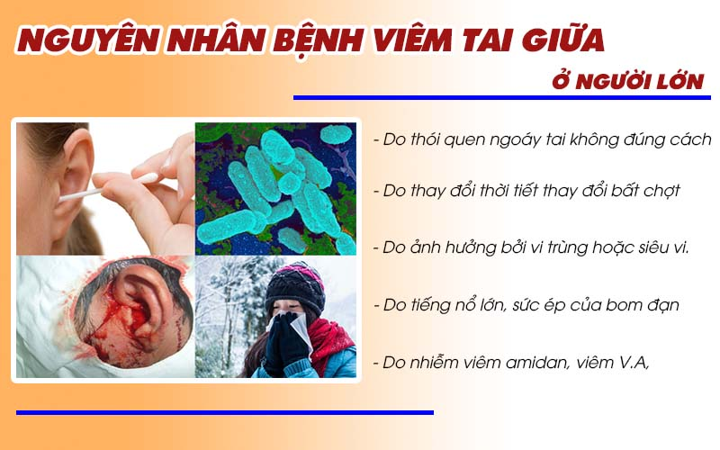 Nguyên nhân viêm tai giữa ở người lớn