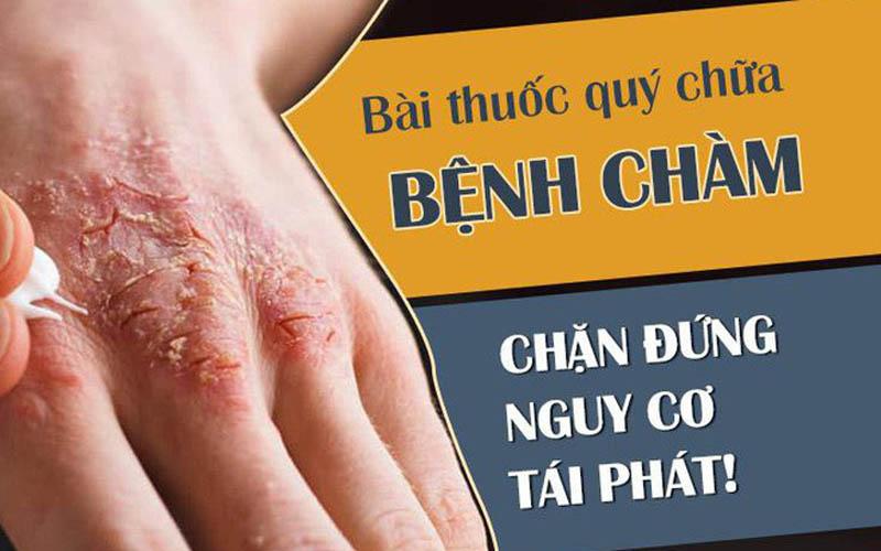 Cách chữa bệnh chàm da
