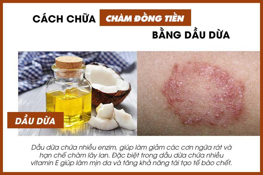 Cách chữa bệnh chàm đồng tiền bằng dầu dừa