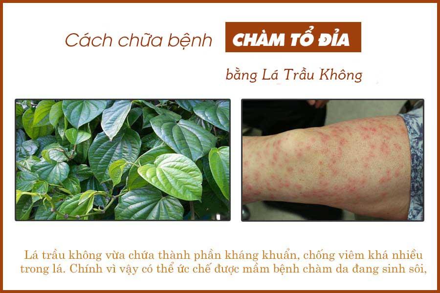 Cách chữa bệnh chàm tổ đỉa bằng lá trầu không