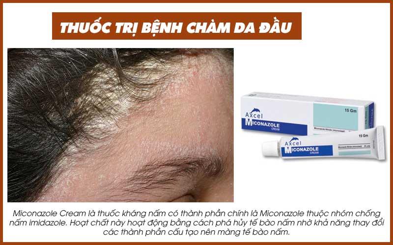 Thuốc trị bệnh chàm da đầu