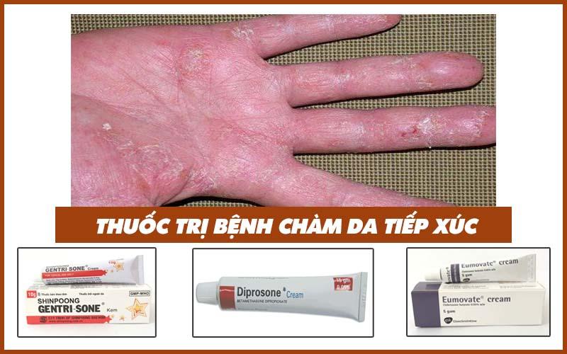 Thuốc trị bệnh chàm da tiếp xúc
