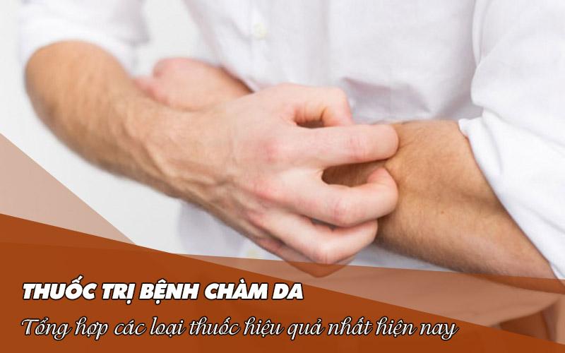 Tổng hợp thuốc trị bệnh chàm da